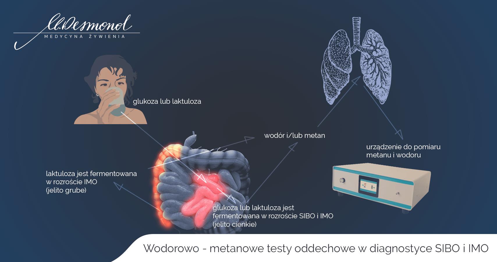 testy  metanowo -wodorowe SIBO IMO Małgorzata DESMOND